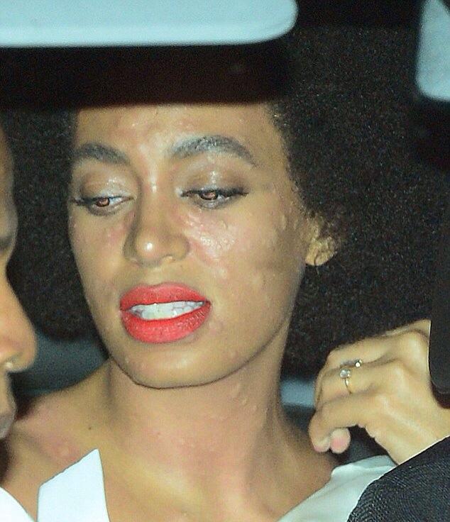 Solange Knowles allergie le jour de son mariage